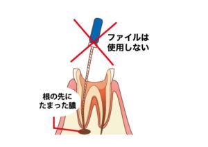 根の先に刺激を与えたくないので使用しません。 (使い方によって急性症状を起こす場合があります。)