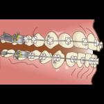 orthodontics046