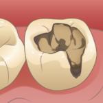 歯のふちの所のむし歯をとります(むし歯に接着剤はつかないので)