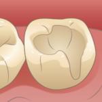 歯の神経を刺激しないように乾燥させます