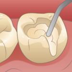 むし歯の深い所は特殊な液体を併用してすごく柔らかいむし歯をとります